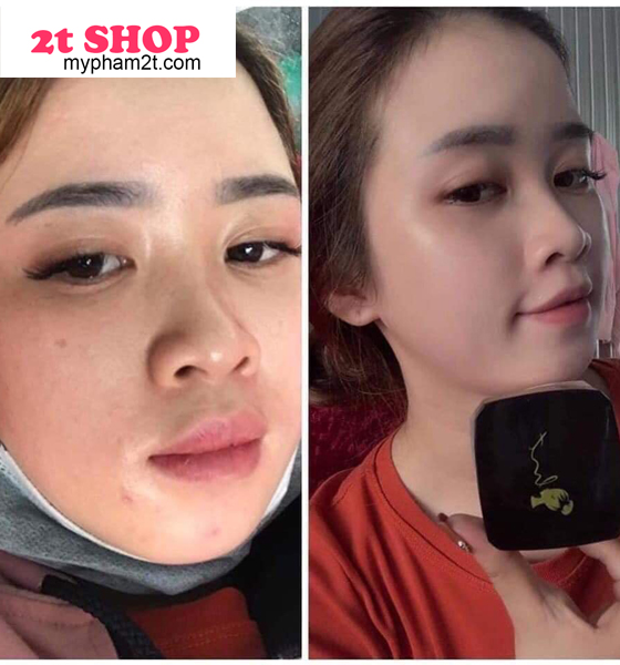 Kem face trắng hồng HM Store