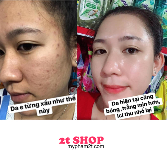 mỹ phẩm hm store review